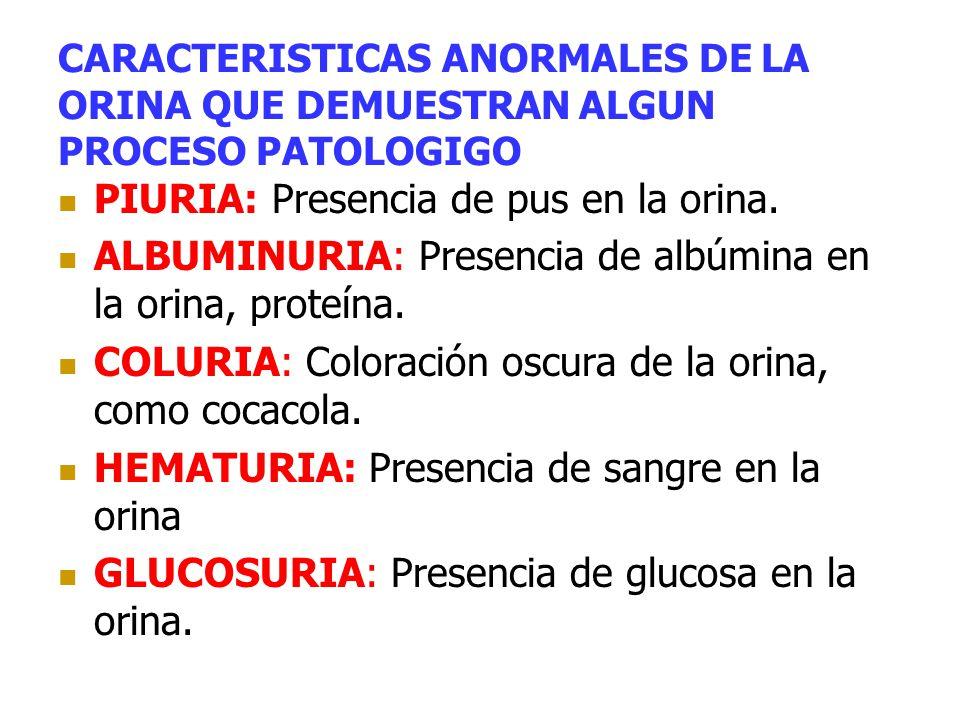 CARACTERISTICAS ANORMALES DE LA ORINA QUE DEMUESTRAN ALGUN PROCESO PATOLOGIGO PIURIA: Presencia de pus en la orina. ALBUMINURIA: Presencia de albúmina