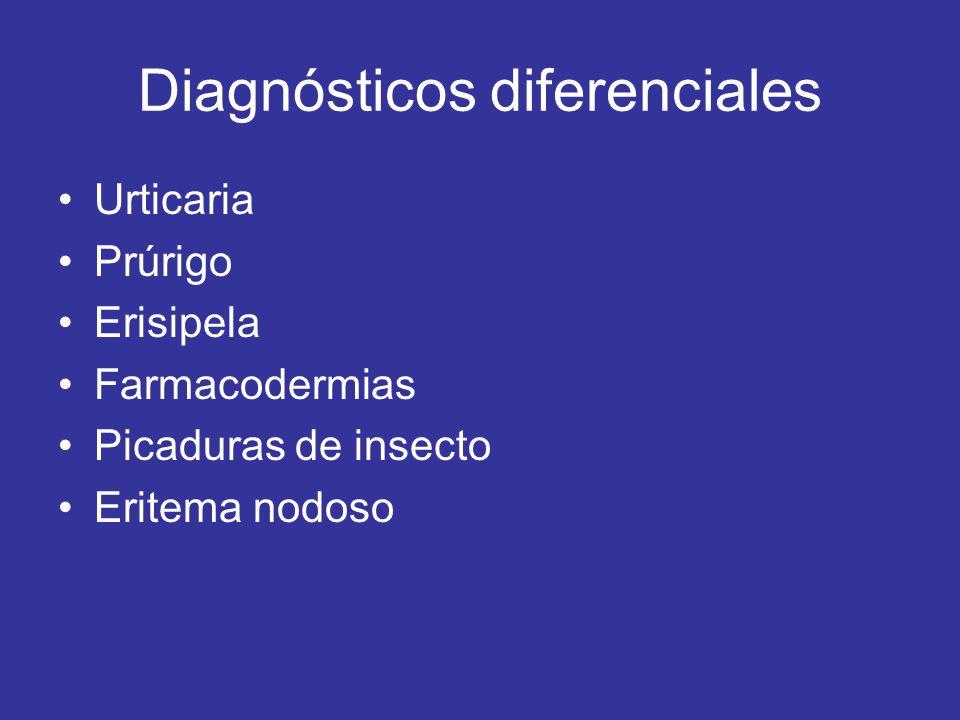 Diagnósticos diferenciales Urticaria Prúrigo Erisipela Farmacodermias Picaduras de insecto Eritema nodoso