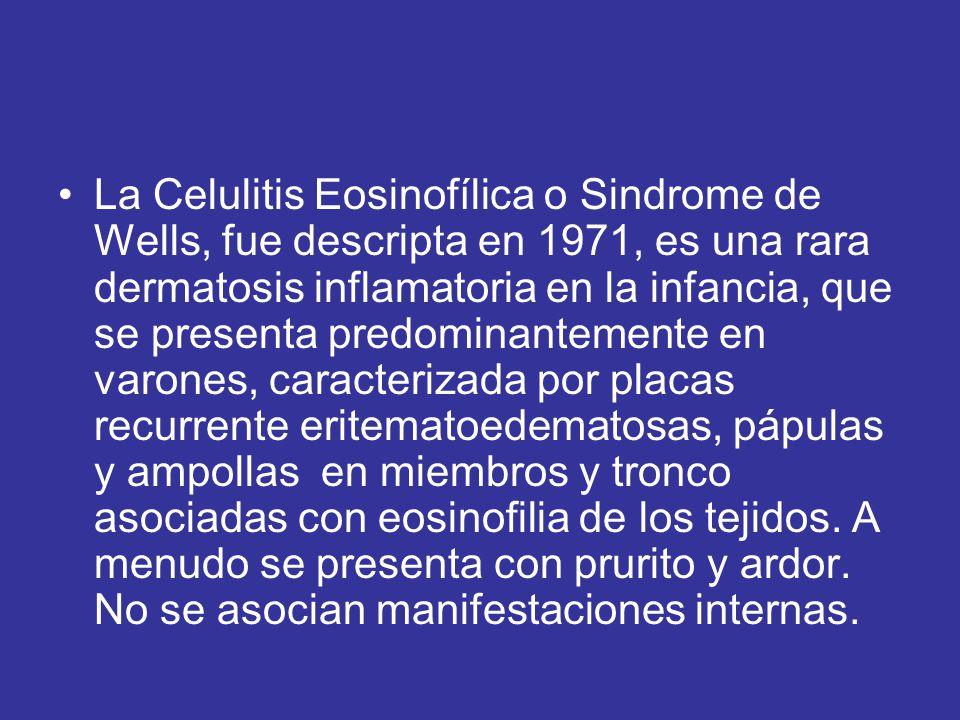 La Celulitis Eosinofílica o Sindrome de Wells, fue descripta en 1971, es una rara dermatosis inflamatoria en la infancia, que se presenta predominante
