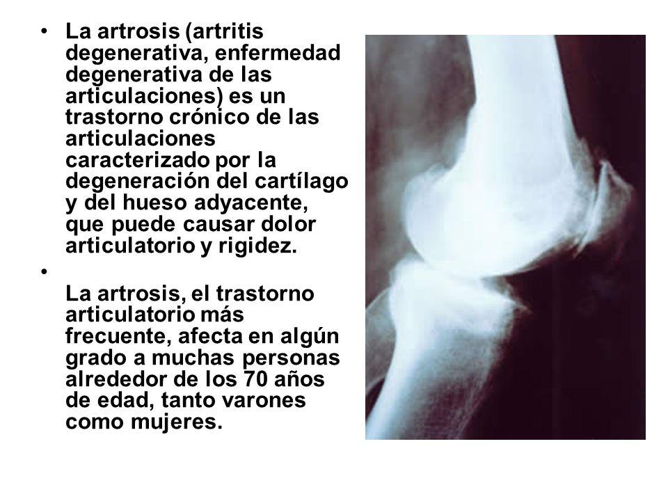 La artrosis (artritis degenerativa, enfermedad degenerativa de las articulaciones) es un trastorno crónico de las articulaciones caracterizado por la