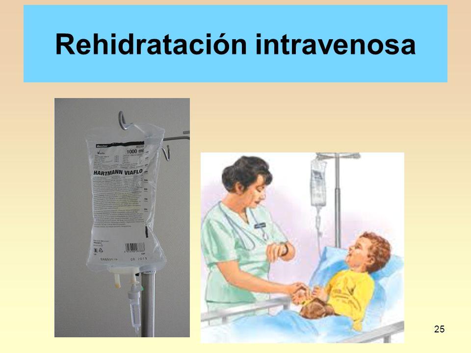 25 Rehidratación intravenosa