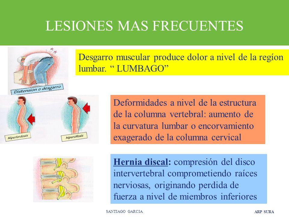 ARP SURA SANTIAGO GARCIA LESIONES MAS FRECUENTES Desgarro muscular produce dolor a nivel de la regíon lumbar.