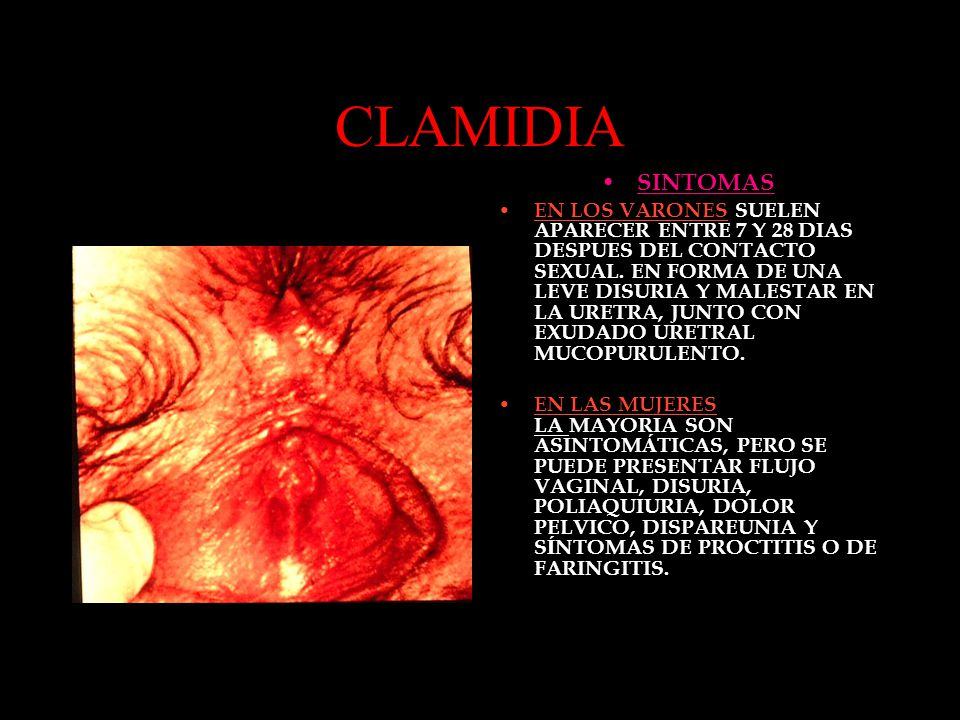 CLAMIDIA SINTOMAS EN LOS VARONES SUELEN APARECER ENTRE 7 Y 28 DIAS DESPUES DEL CONTACTO SEXUAL. EN FORMA DE UNA LEVE DISURIA Y MALESTAR EN LA URETRA,