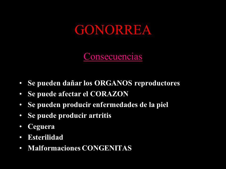 GONORREA Consecuencias Se pueden dañar los ORGANOS reproductores Se puede afectar el CORAZON Se pueden producir enfermedades de la piel Se puede producir artritis Ceguera Esterilidad Malformaciones CONGENITAS