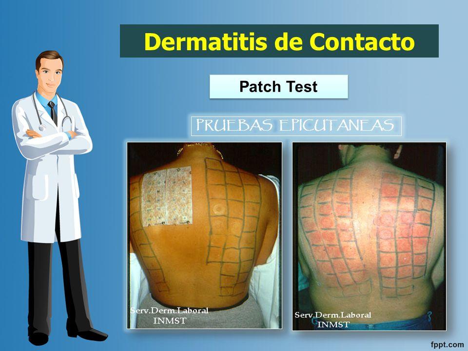 Se basa en la identificación del agente causal y la evitación de nuevos contactos.
