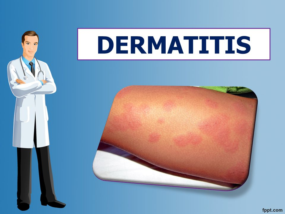 Corresponde ala inflamación de la piel caracterizada, por enrojecimiento, formación de vesículas, costras y otras lesiones cutáneas que se acompañan de intenso prurito.
