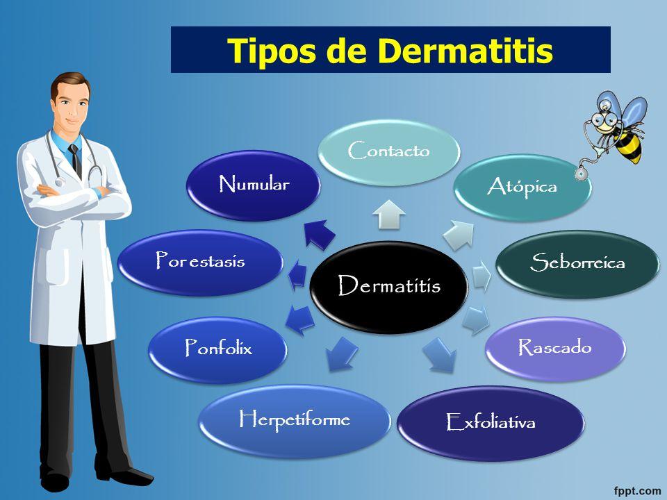 DERMATITIS ATÓPICA: Trastorno inflamatorio crónico que suele presentarse durante la época de la lactancia o en la infancia en niños que tienen la predisposición hereditaria para los trastornos alérgicos.