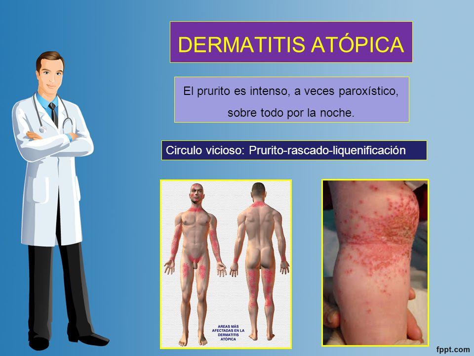 Se trata con antihistamínicos, corticoesteroides, antihistamínicos, antipruriginosos y sedantes TRATAMIENTO Cuidar siempre su piel: Hidratar correctamente.