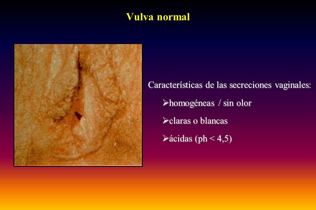 Vulva normal Características de las secreciones vaginales:  homogéneas / sin olor  claras o blancas  ácidas (ph < 4,5)
