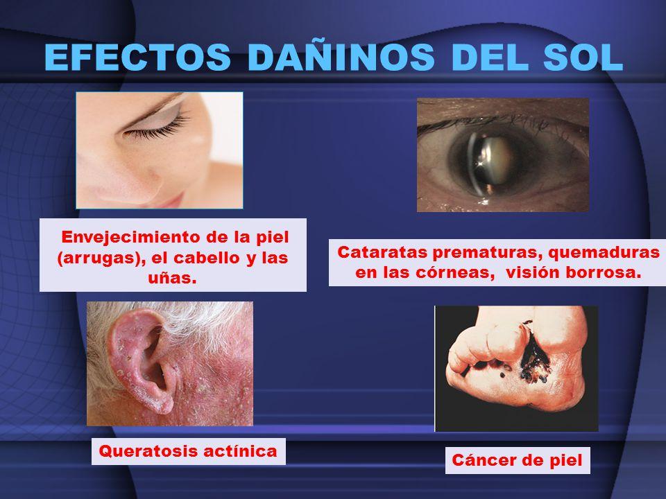 Envejecimiento de la piel (arrugas), el cabello y las uñas. Cáncer de piel Cataratas prematuras, quemaduras en las córneas, visión borrosa. Queratosis