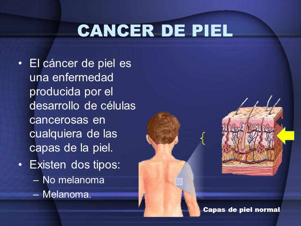 CANCER DE PIEL El cáncer de piel es una enfermedad producida por el desarrollo de células cancerosas en cualquiera de las capas de la piel. Existen do