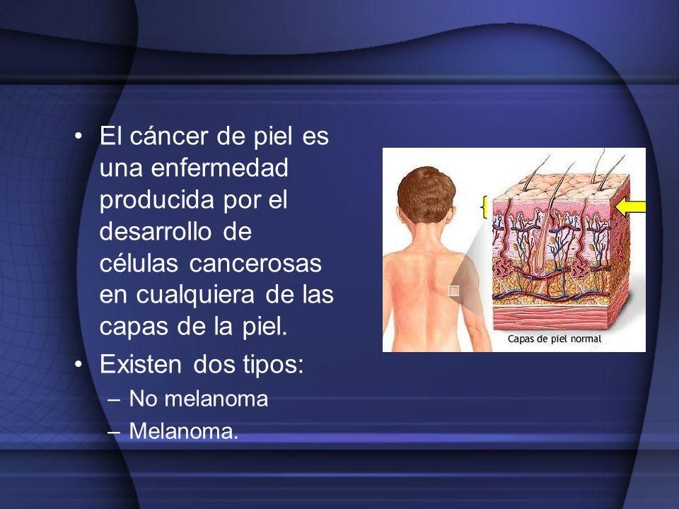 El cáncer de piel es una enfermedad producida por el desarrollo de células cancerosas en cualquiera de las capas de la piel. Existen dos tipos: –No me