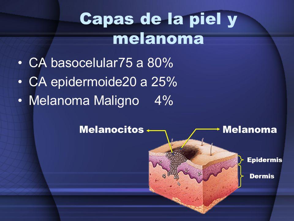 Capas de la piel y melanoma CA basocelular75 a 80% CA epidermoide20 a 25% Melanoma Maligno4% MelanocitosMelanoma Epidermis Dermis
