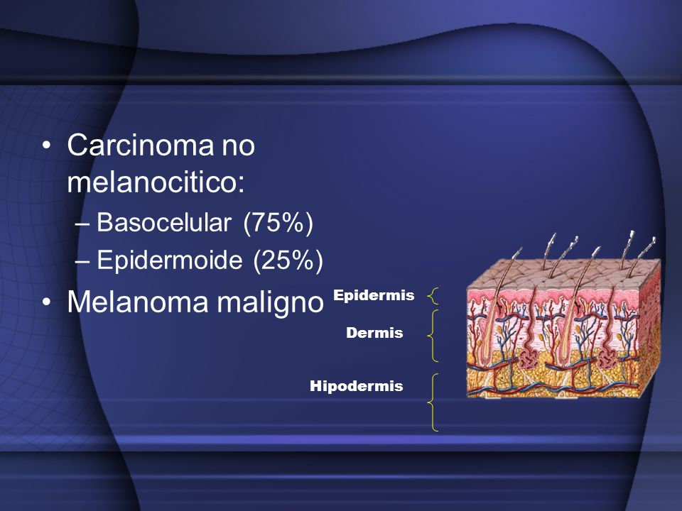 Carcinoma no melanocitico: –Basocelular (75%) –Epidermoide (25%) Melanoma maligno Epidermis Dermis Hipodermis