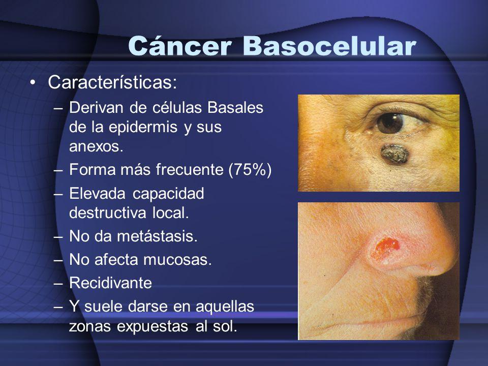 Cáncer Basocelular Características: –Derivan de células Basales de la epidermis y sus anexos. –Forma más frecuente (75%) –Elevada capacidad destructiv