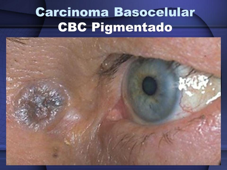 Carcinoma Basocelular CBC Pigmentado