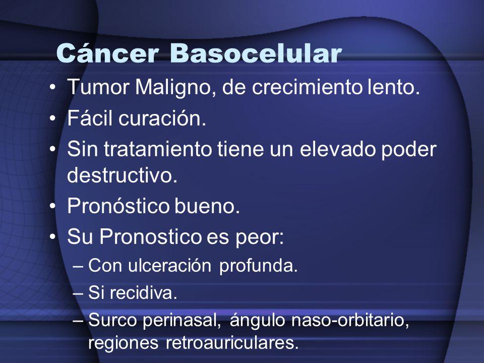 Cáncer Basocelular Tumor Maligno, de crecimiento lento. Fácil curación. Sin tratamiento tiene un elevado poder destructivo. Pronóstico bueno. Su Prono