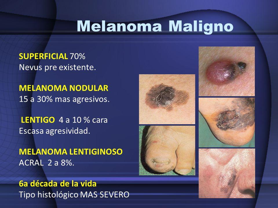 Melanoma Maligno SUPERFICIAL 70% Nevus pre existente. MELANOMA NODULAR 15 a 30% mas agresivos. LENTIGO 4 a 10 % cara Escasa agresividad. MELANOMA LENT