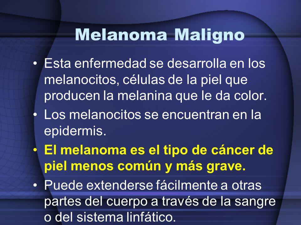 Melanoma Maligno Esta enfermedad se desarrolla en los melanocitos, células de la piel que producen la melanina que le da color. Los melanocitos se enc