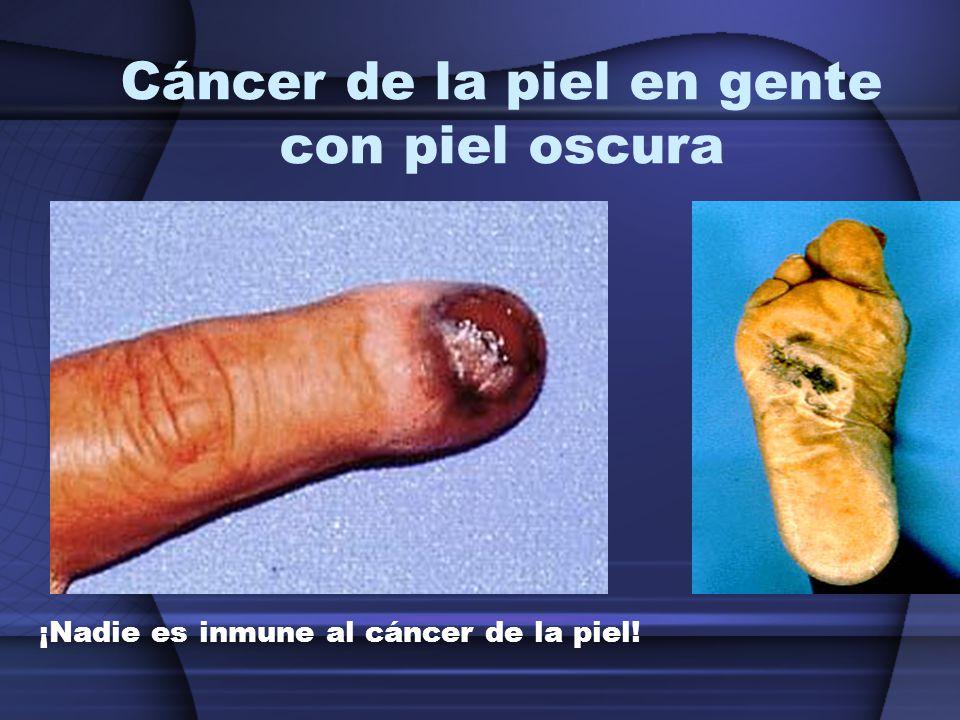 Cáncer de la piel en gente con piel oscura ¡Nadie es inmune al cáncer de la piel!