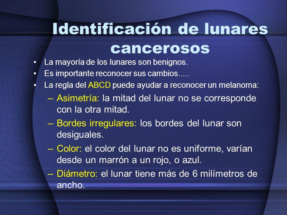 Identificación de lunares cancerosos La mayoría de los lunares son benignos. Es importante reconocer sus cambios..... La regla del ABCD puede ayudar a