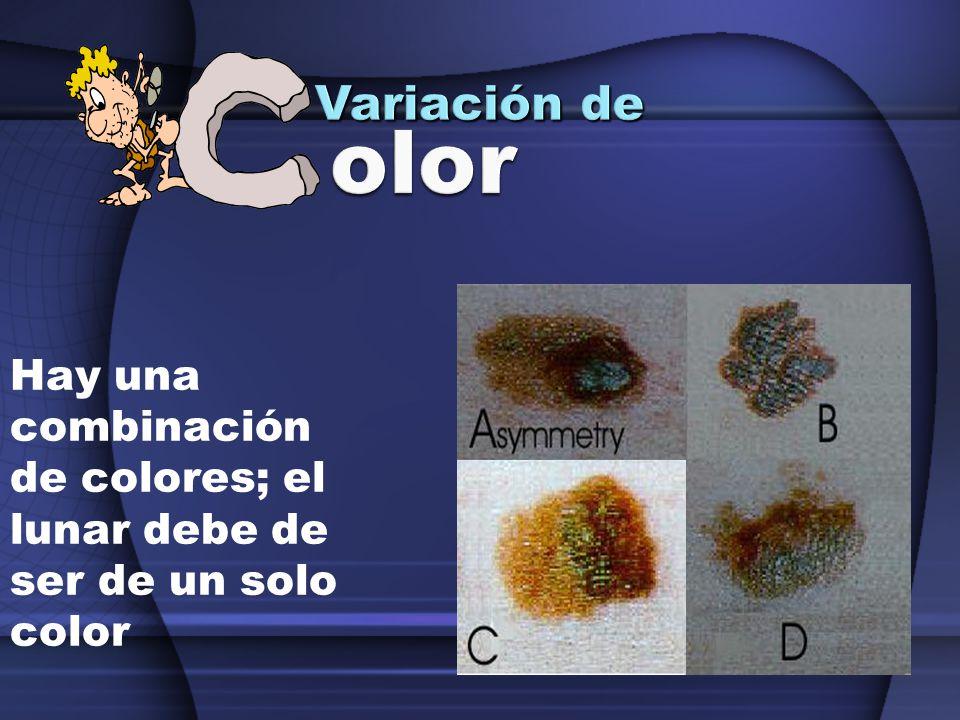 Hay una combinación de colores; el lunar debe de ser de un solo color
