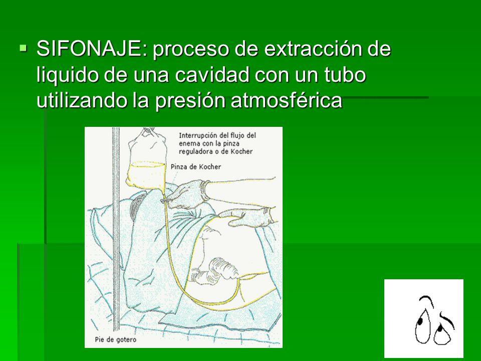  SIFONAJE: proceso de extracción de liquido de una cavidad con un tubo utilizando la presión atmosférica