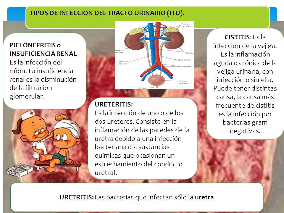CLASIFICACION INFECCIONES URINARIAS BAJAS URETRITIS CISTITIS INFECCIONES URINARIAS ALTAS PIELONEFRITIS AGUDA PROSTATITIS INFECCIONES URINARIAS RECURRENTES INFECCIONES URINARIAS CRONICAS