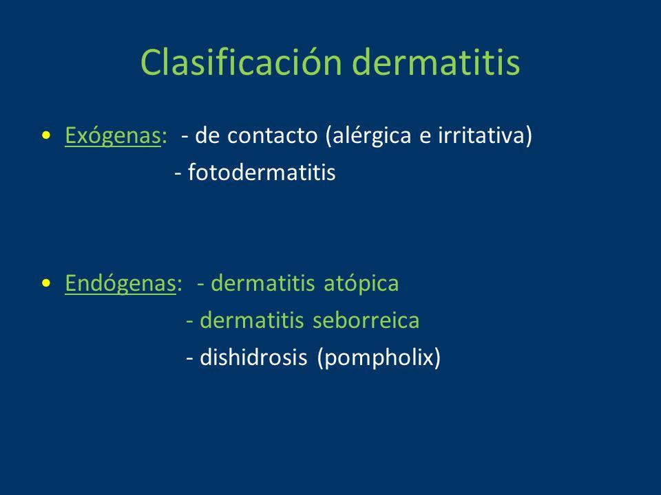 Clasificación dermatitis Exógenas: - de contacto (alérgica e irritativa) - fotodermatitis Endógenas: - dermatitis atópica - dermatitis seborreica - dishidrosis (pompholix)