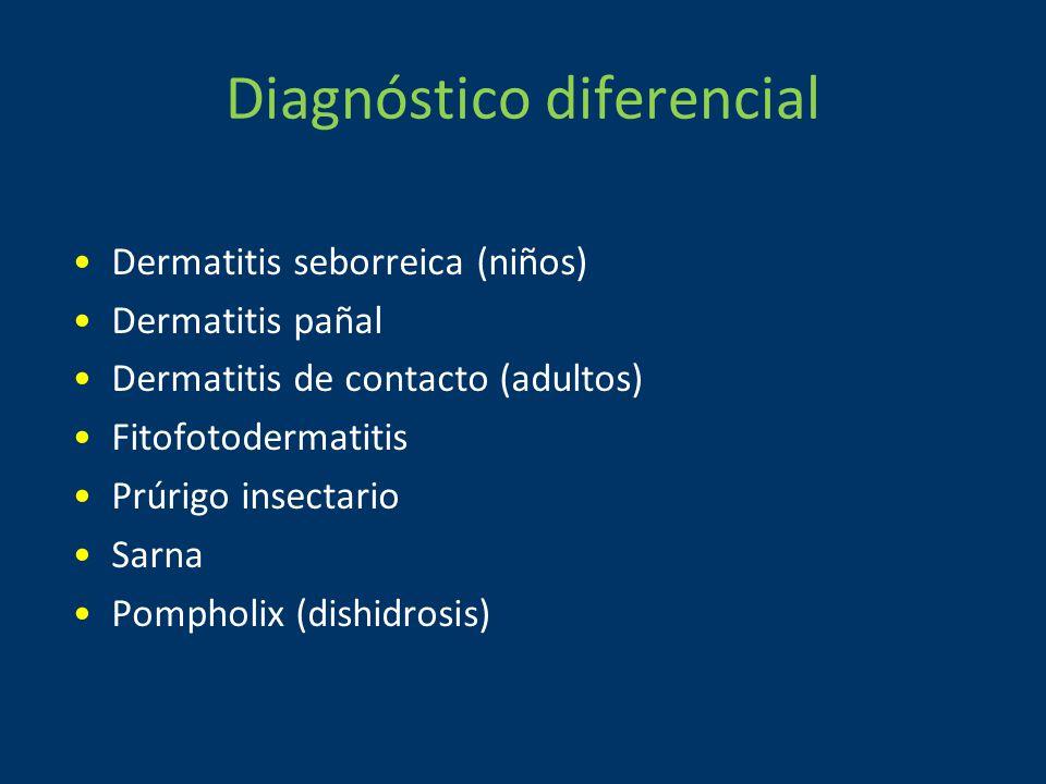 Diagnóstico diferencial Dermatitis seborreica (niños) Dermatitis pañal Dermatitis de contacto (adultos) Fitofotodermatitis Prúrigo insectario Sarna Pompholix (dishidrosis)