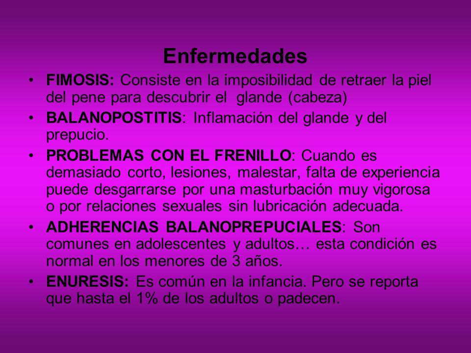 Enfermedades FIMOSIS: Consiste en la imposibilidad de retraer la piel del pene para descubrir el glande (cabeza) BALANOPOSTITIS: Inflamación del gland