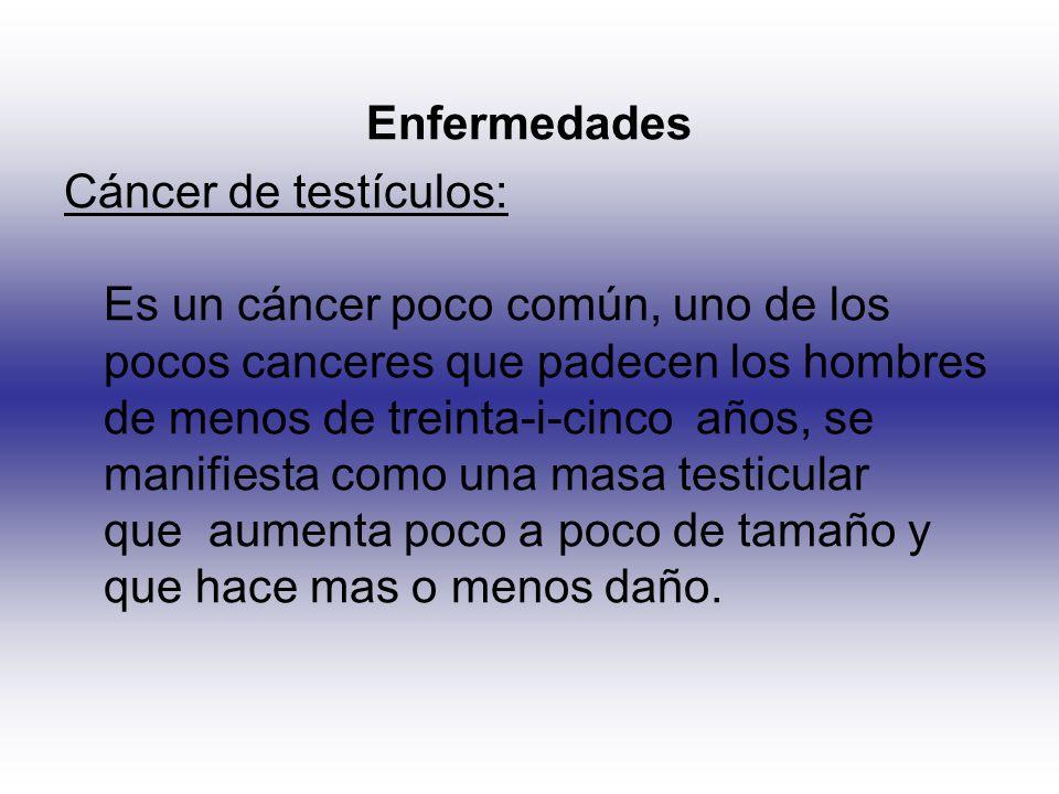 Enfermedades Cáncer de testículos: Es un cáncer poco común, uno de los pocos canceres que padecen los hombres de menos de treinta-i-cinco años, se man