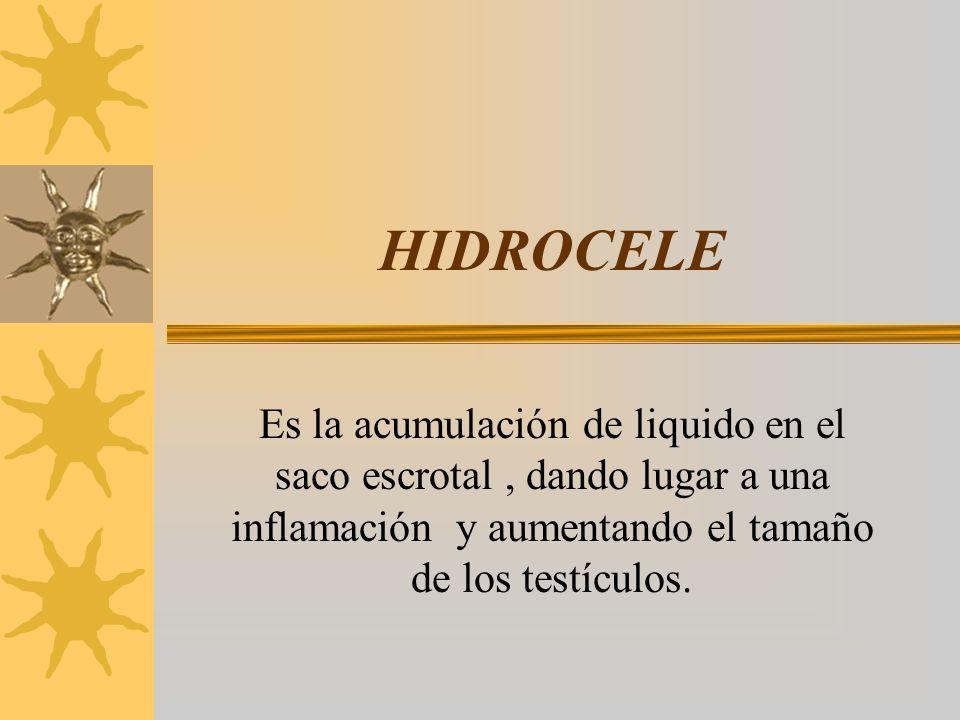 HIDROCELE Es la acumulación de liquido en el saco escrotal, dando lugar a una inflamación y aumentando el tamaño de los testículos.