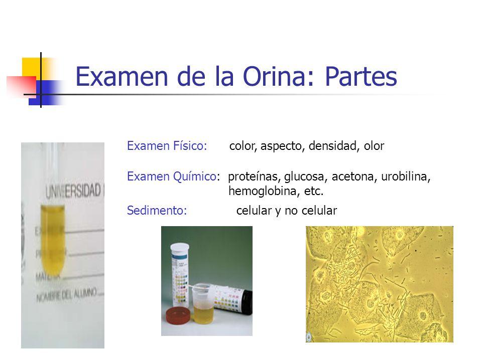 Examen Físico: color, aspecto, densidad, olor Examen de la Orina: Partes Examen Químico: proteínas, glucosa, acetona, urobilina, hemoglobina, etc. Sed