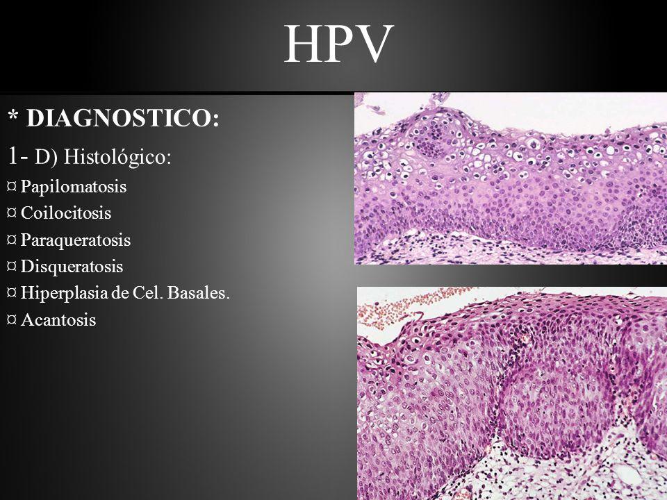 HPV * DIAGNOSTICO: 1- D) Histológico: ¤ Papilomatosis ¤ Coilocitosis ¤ Paraqueratosis ¤ Disqueratosis ¤ Hiperplasia de Cel.