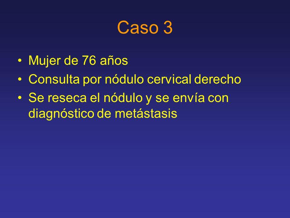 Caso 3 Mujer de 76 años Consulta por nódulo cervical derecho Se reseca el nódulo y se envía con diagnóstico de metástasis