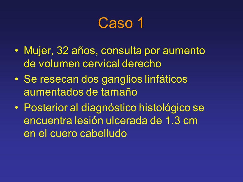 Caso 1 Mujer, 32 años, consulta por aumento de volumen cervical derecho Se resecan dos ganglios linfáticos aumentados de tamaño Posterior al diagnóstico histológico se encuentra lesión ulcerada de 1.3 cm en el cuero cabelludo