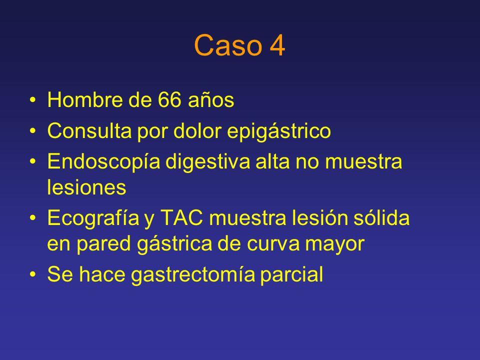 Caso 4 Hombre de 66 años Consulta por dolor epigástrico Endoscopía digestiva alta no muestra lesiones Ecografía y TAC muestra lesión sólida en pared gástrica de curva mayor Se hace gastrectomía parcial
