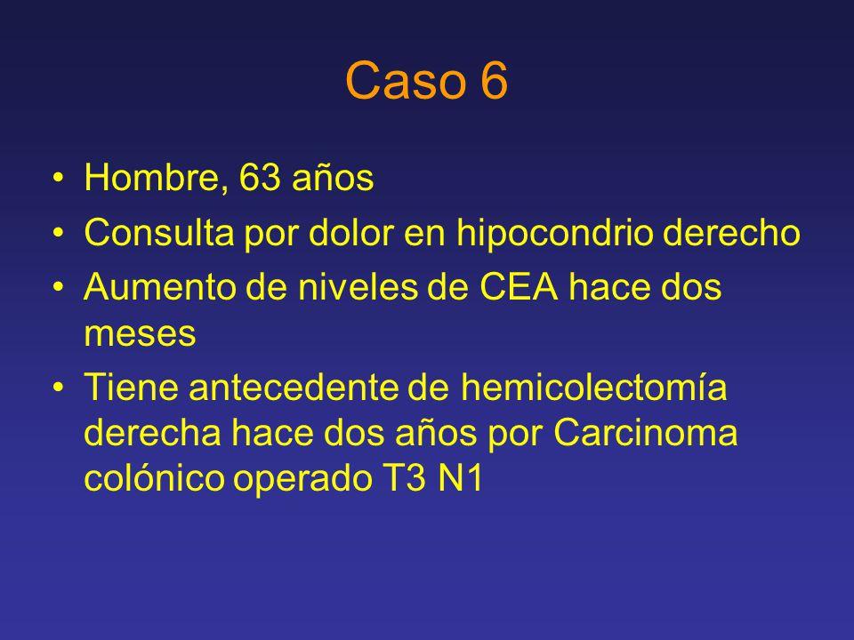 Caso 6 Hombre, 63 años Consulta por dolor en hipocondrio derecho Aumento de niveles de CEA hace dos meses Tiene antecedente de hemicolectomía derecha hace dos años por Carcinoma colónico operado T3 N1