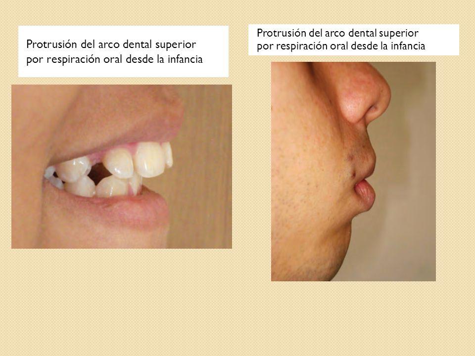 Protrusión del arco dental superior por respiración oral desde la infancia Protrusión del arco dental superior por respiración oral desde la infancia
