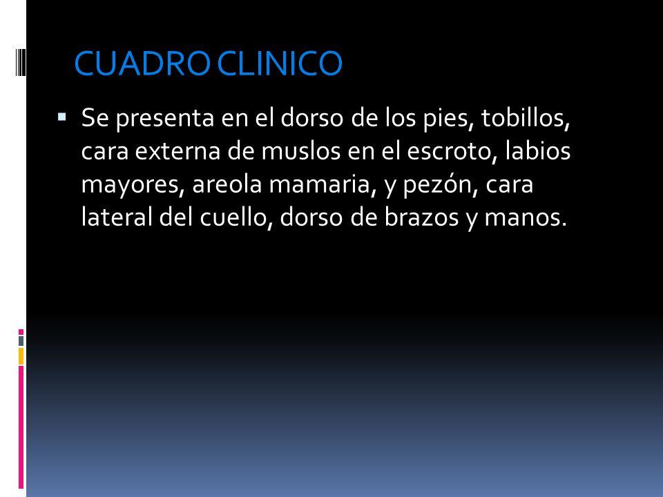CUADRO CLINICO  Se presenta en el dorso de los pies, tobillos, cara externa de muslos en el escroto, labios mayores, areola mamaria, y pezón, cara lateral del cuello, dorso de brazos y manos.
