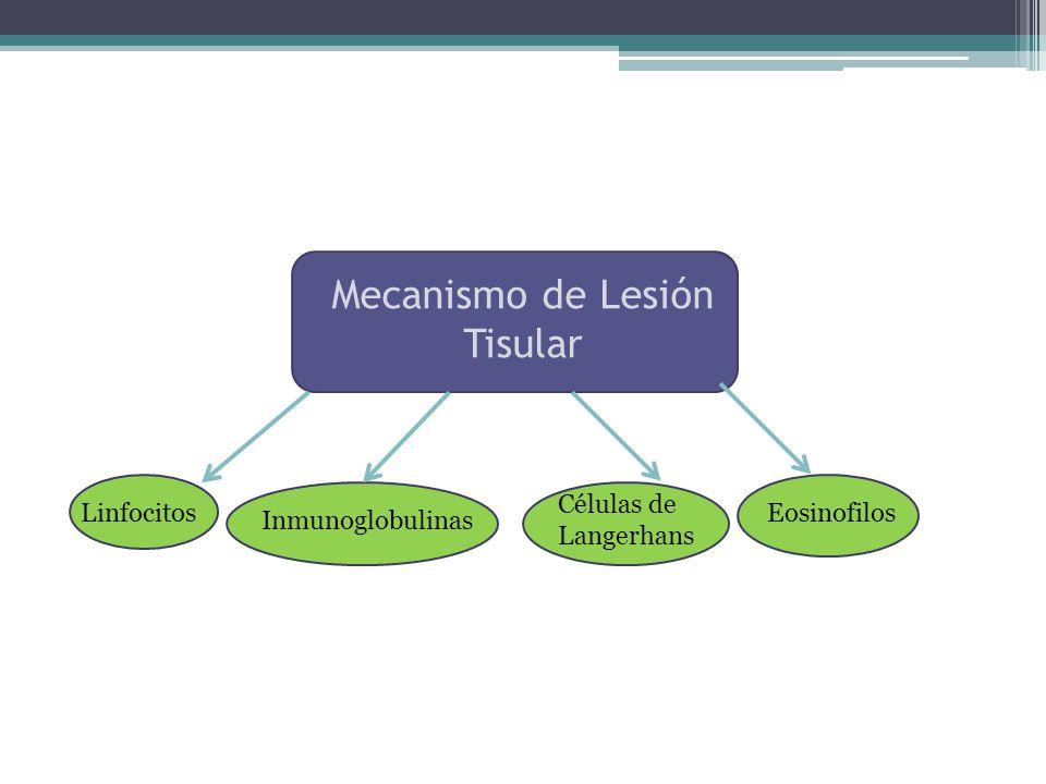 Mecanismo de Lesión Tisular Linfocitos Inmunoglobulinas Células de Langerhans Eosinofilos