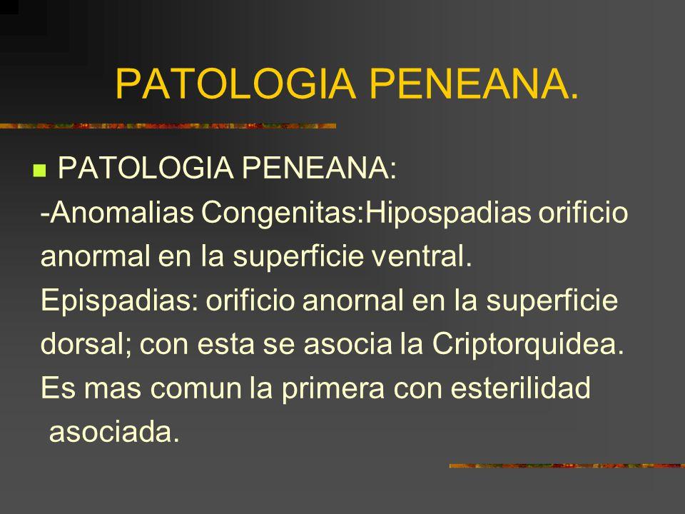 PATOLOGIA PENEANA: -Anomalias Congenitas:Hipospadias orificio anormal en la superficie ventral.