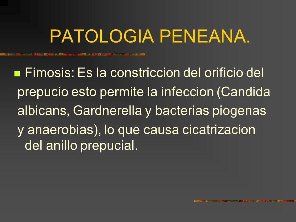 PATOLOGIA PENEANA.