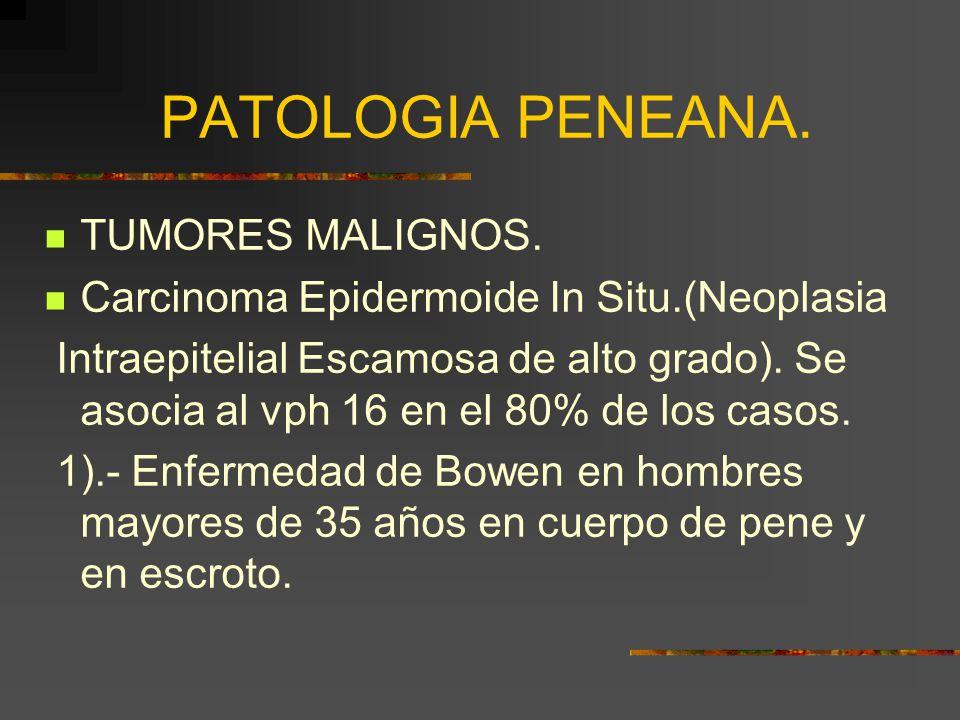 PATOLOGIA PENEANA.TUMORES MALIGNOS.