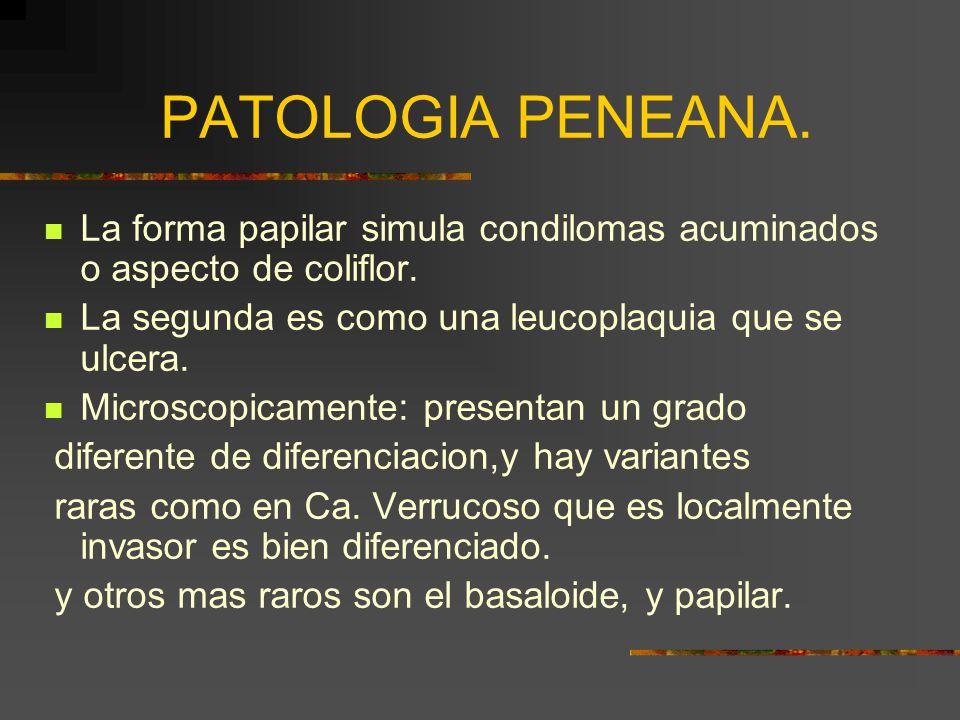 PATOLOGIA PENEANA.La forma papilar simula condilomas acuminados o aspecto de coliflor.