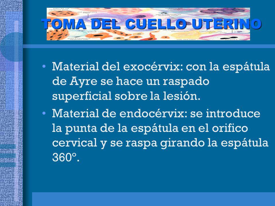 TOMA DEL CUELLO UTERINO Material del exocérvix: con la espátula de Ayre se hace un raspado superficial sobre la lesión.