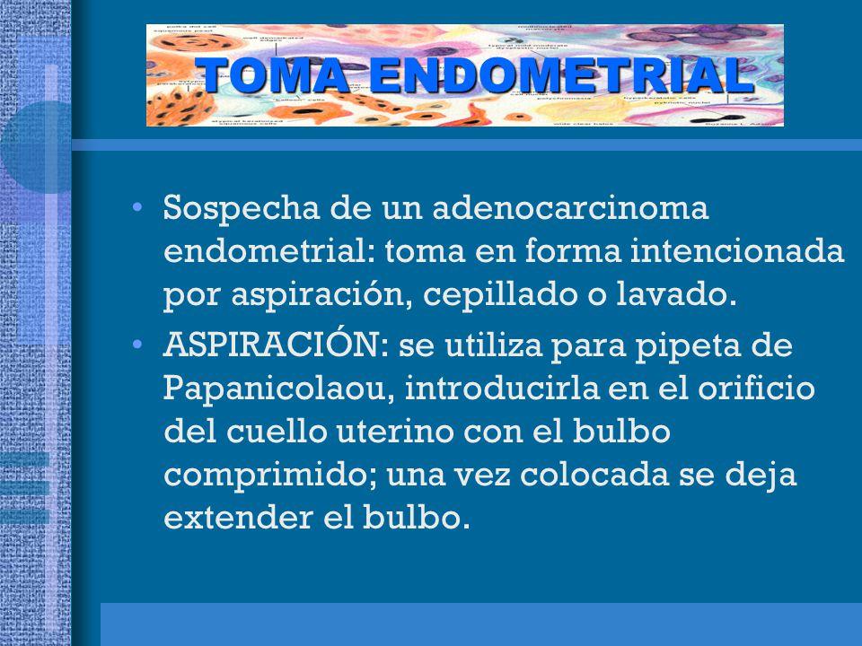 TOMA ENDOMETRIAL Sospecha de un adenocarcinoma endometrial: toma en forma intencionada por aspiración, cepillado o lavado.