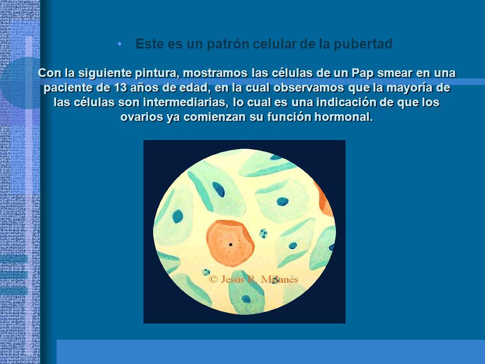 En esta pintura mostramos las células de un Pap smear en una paciente a los 15 días de la menstruación.