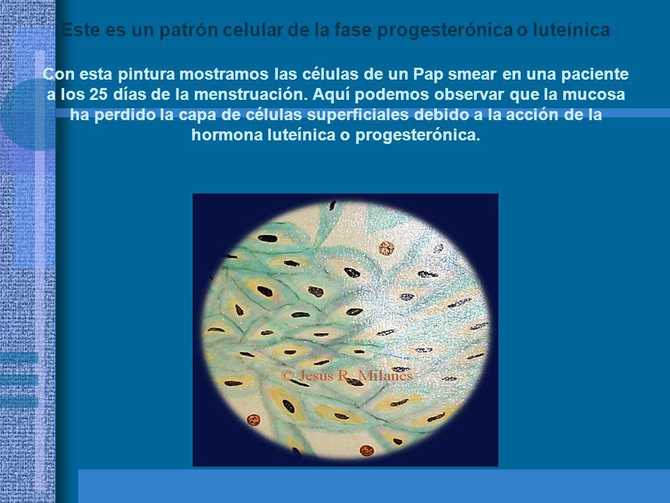 Con esta pintura mostramos las células de un Pap smear en una paciente que está en gestación.